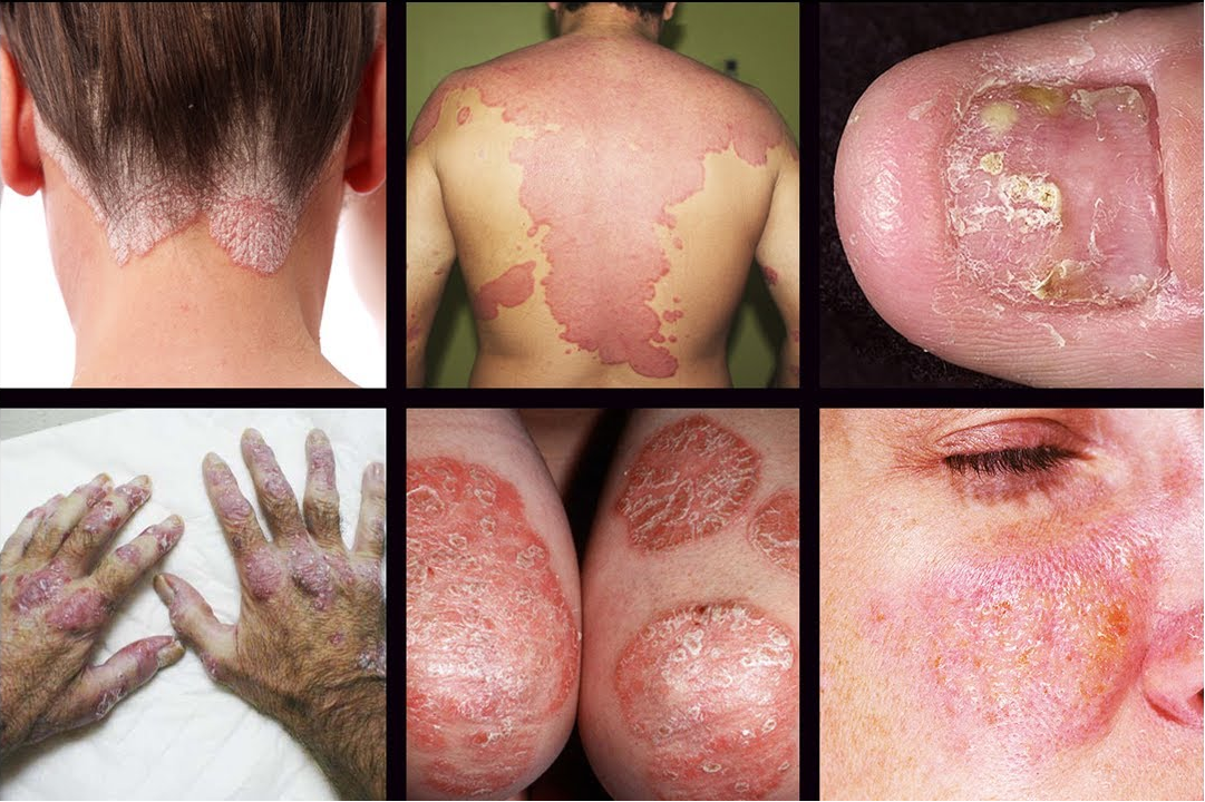 different-types-of-psoriasis.png